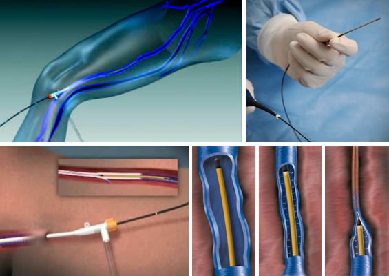 Endovenous Radio Frequency Ablation